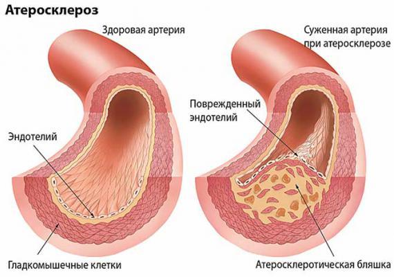 Атеросклероз сосудов головного мозга причина головные боли