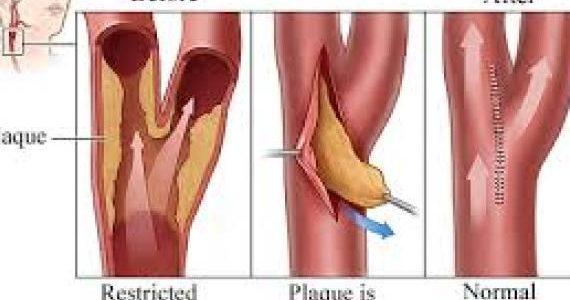 Когда проводят операцию каротидная эндартерэктомия