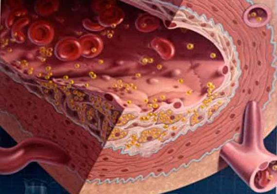 Чем опасен повышенный уровень холестерина крови?