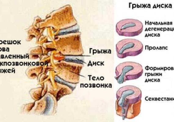 Грыжа межпозвоночного диска: симптомы, лечение без операции