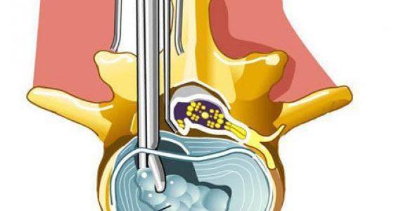 Что такое микродискэктомия?