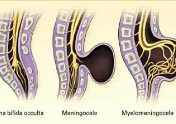 Расщелина позвоночника – Spina Bifida