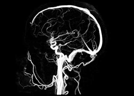 Магнитно-резонансная ангиография - МРА