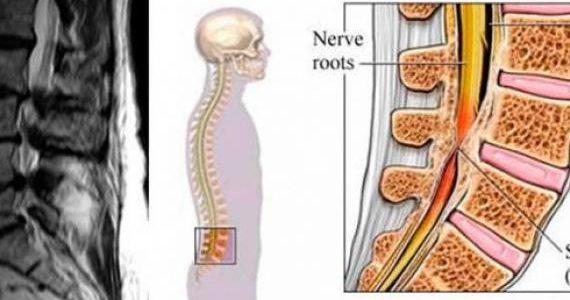 Дегенеративный стеноз позвоночного канала