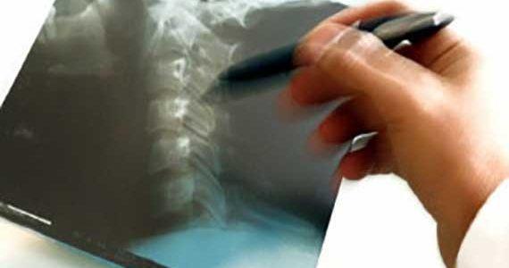 Симптомы и проявления заболеваний позвоночника