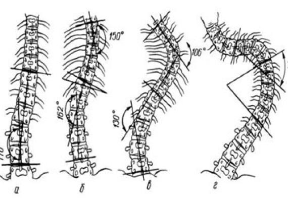 Сколиоз, сколиотическая болезнь позвоночника