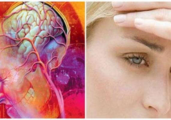 Пульсирующая головная боль сосудистая головная боль