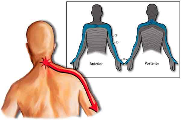 защемление нерва в шейном отделе позвоночника