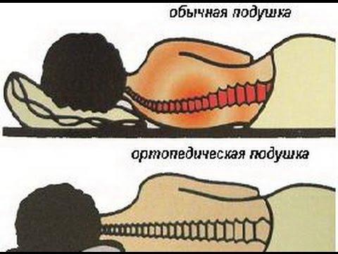 Как правильно спать при остеохондрозе позвоночника?