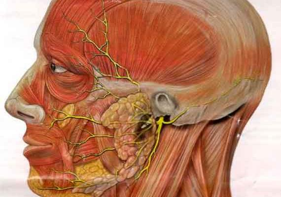 Острая невропатия лицевого нерва лечение