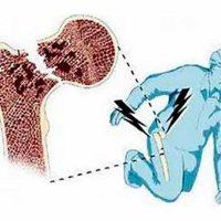 Симптомы остеопороза, причины, лечение и профилактика