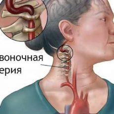 Вертебробазилярная недостаточность: симптомы, диагностика, лечение